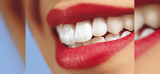 En Sağlıklı Diş Kaplama Yöntemleri