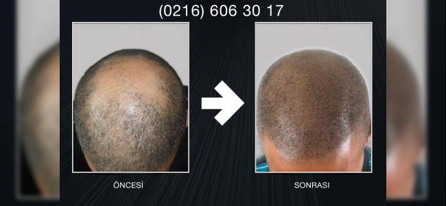 Saçsızlığa Devrim Gibi Çözüm: Saç Simülasyonu (Saç Gölgelendirme)!