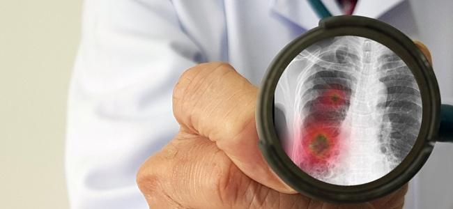 65 Yaş Ve Üzeri Vatandaşlara Zatürre Aşısı Tavsiyesi