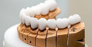 Oral Diagnoz Nedir?