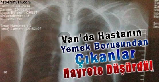Van'da Hastanın Yemek Borusundan Çıkanlar Şaşırttı